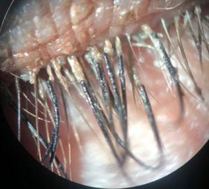 eyelash bacteria